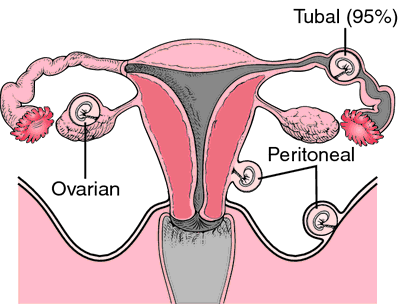 Pregnant three months after tubal ligation