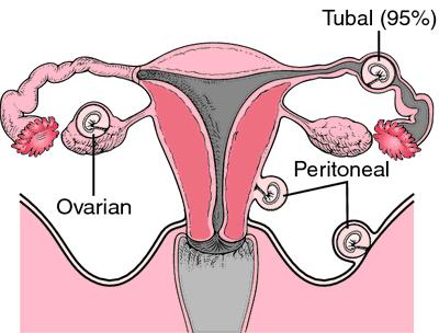 Pregnant three months after tubal ligation