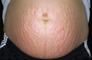 Cura di eczema lampada ultravioletta