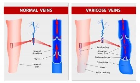 Come preverrà varicosity a gravidanza