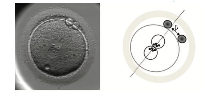 embrione giorno 1 pronuclei
