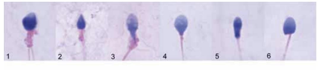 morfologia anormale spermatozoi