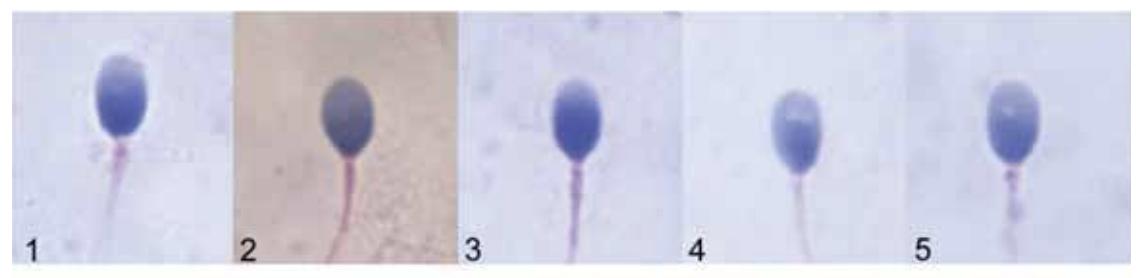 esempio spermatozoi morfologia normale