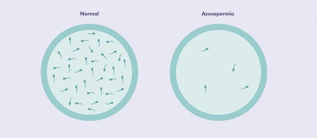 azoospermia vs normale
